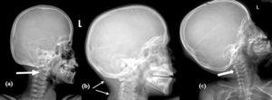 Detaliu cutremurător în cazul femeii moarte la Bradu: utilajul i-a strivit capul!