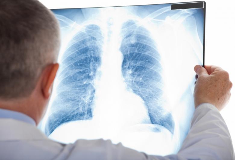Bolnavii de TBC, căutaţi în Argeş cu o caravană