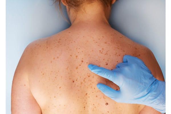 Cancer de piele: zeci de cazuri depistate în Argeș